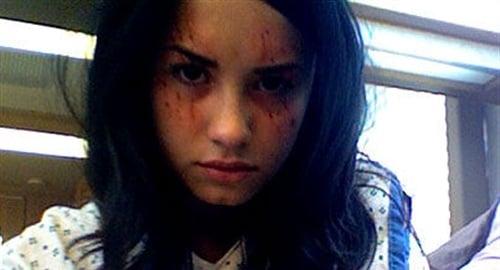 Demi Lovato crazy