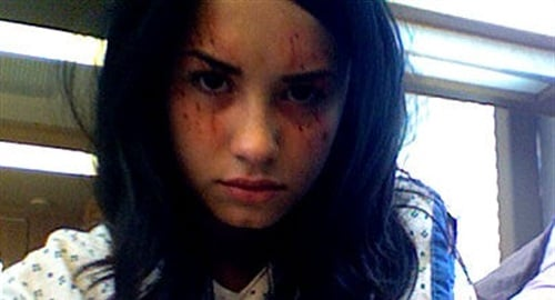 Did Joe Jonas Beat Up Demi Lovato?