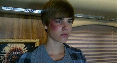 Justin Bieber beat up