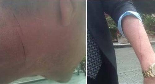 Michael Lohan stabbed
