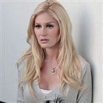 Heidi Montag's New Plastic Surgery Face