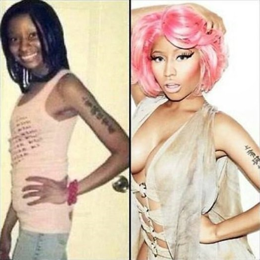 Shocking Nicki Minaj Before Plastic Surgery Pic