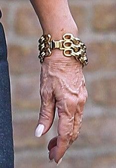 Kirstie Alley's Disgusting Wrinkled Hands