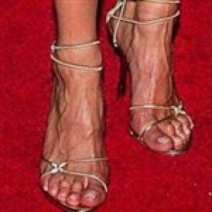 The Ugliest Celebrity Feet