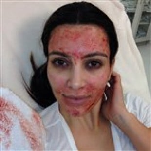 Kim Kardashian's Face Covered In Blood