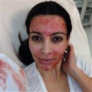 Kim Kardashian's Face Covered In Blood